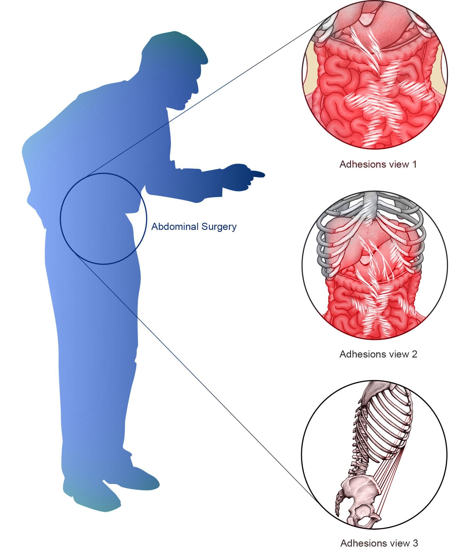 Abdominal Adhesions Adhesions Related Disorder Ard