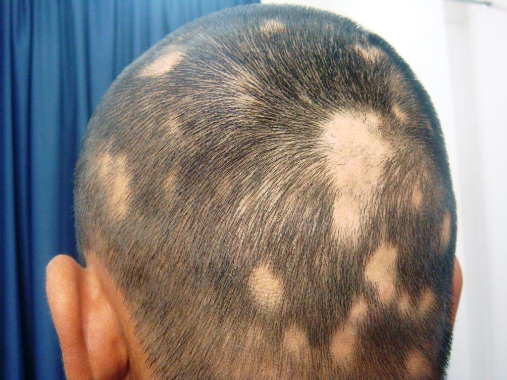 Alopecia Youthful Hair Loss Problem Herbal Care