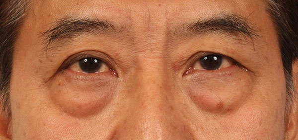 Natural Treatment For Red Eyes