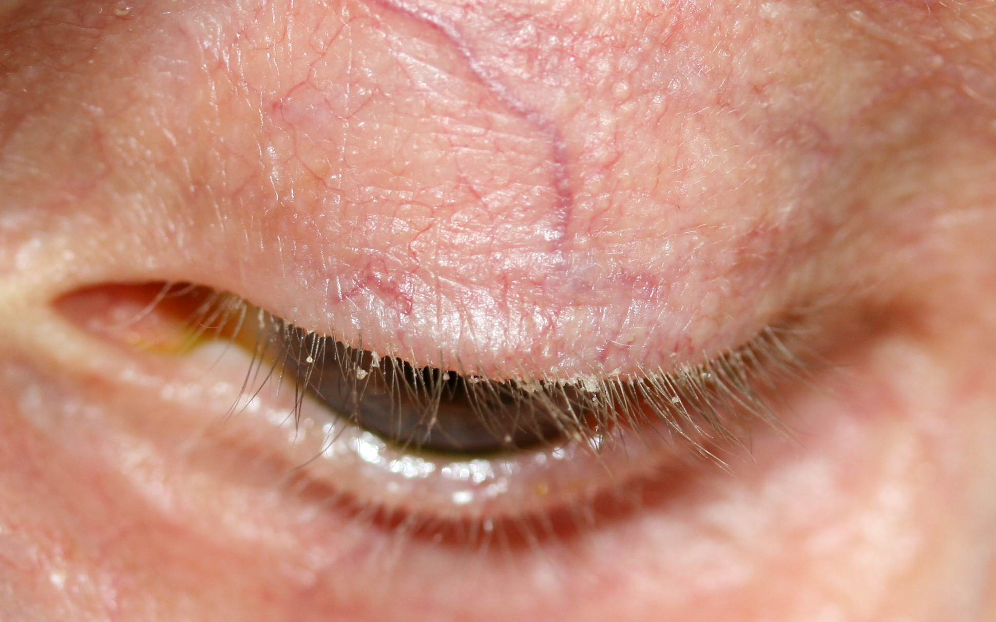 blepharitis symptoms causes diagnosis and treatment