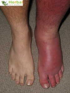 Cellulitis Treatment by Herbal Care Products Cellulitis-treatment-225x300