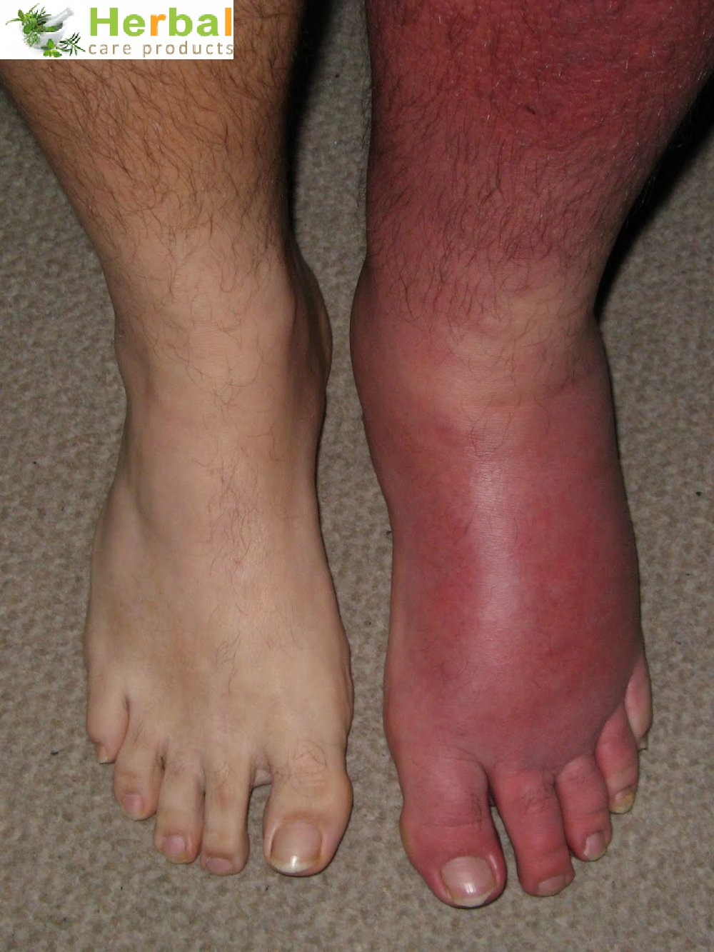 picture of cellulitis #11