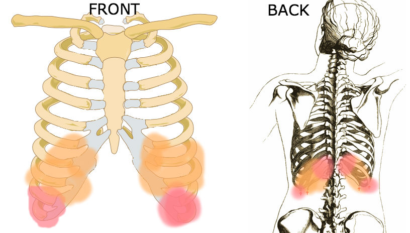 costochondritis symptoms treatment and chest pain cause - herbal, Skeleton