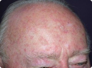 what-is-actinic-keratosis