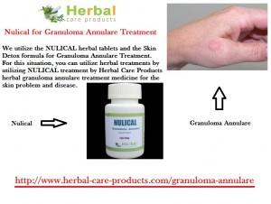 granuloma-annulare