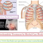 costochondritis-herbal-treatment