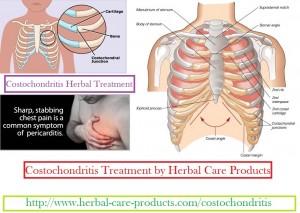 costochondritis-herbal-treatment