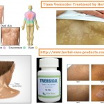 natural-herbal-remedies-for-tinea-versicolor-treatment