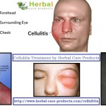 treatment-of-cellulitis-by-natural-herbal-remedies