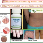 lichen-planus-treatment-by-natural-herbal-remedies