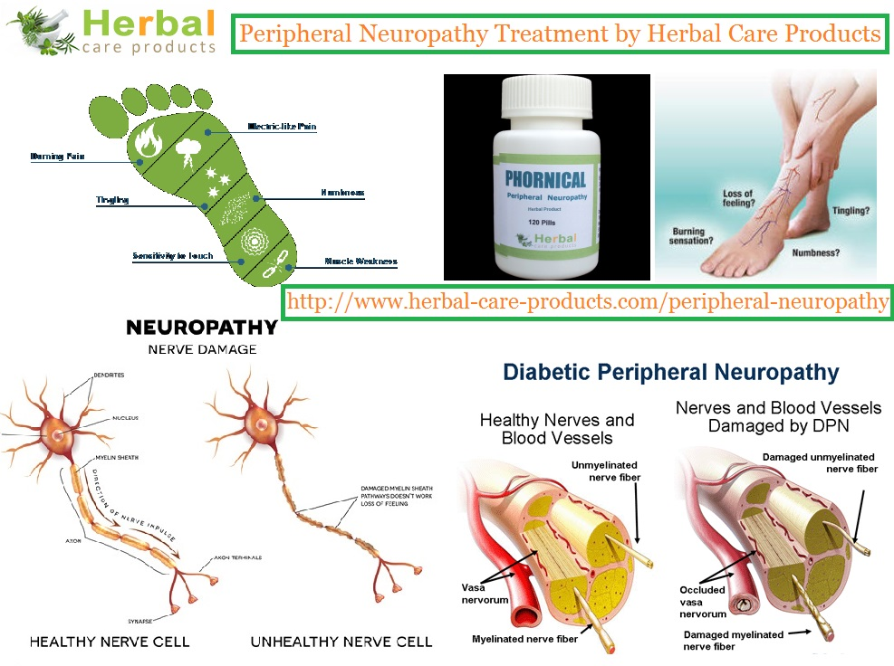Natural Treatment For Neuropathy Pain
