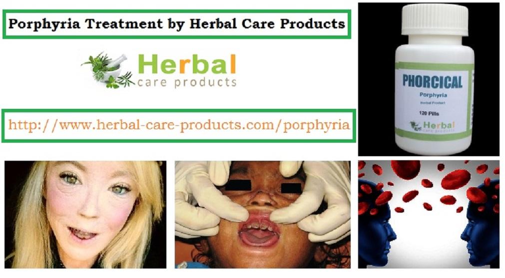 Porphyria Natural Treatment