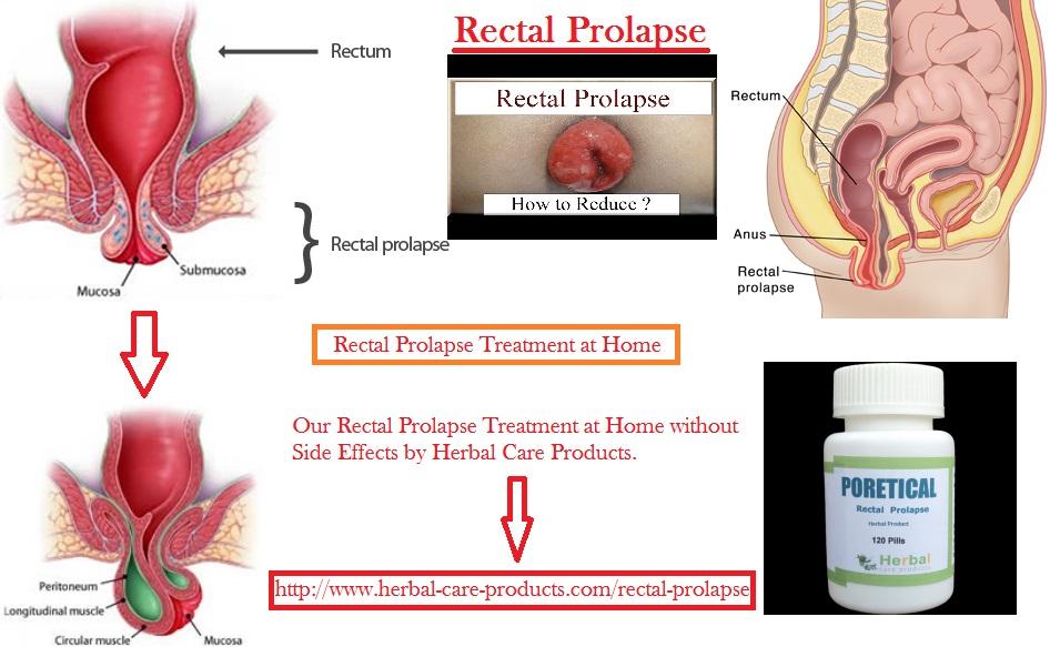 Tegn Og Symptomer På Rektal Prolaps