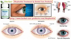 treatment-of-blepharitis-by-natural-herbal-remedies
