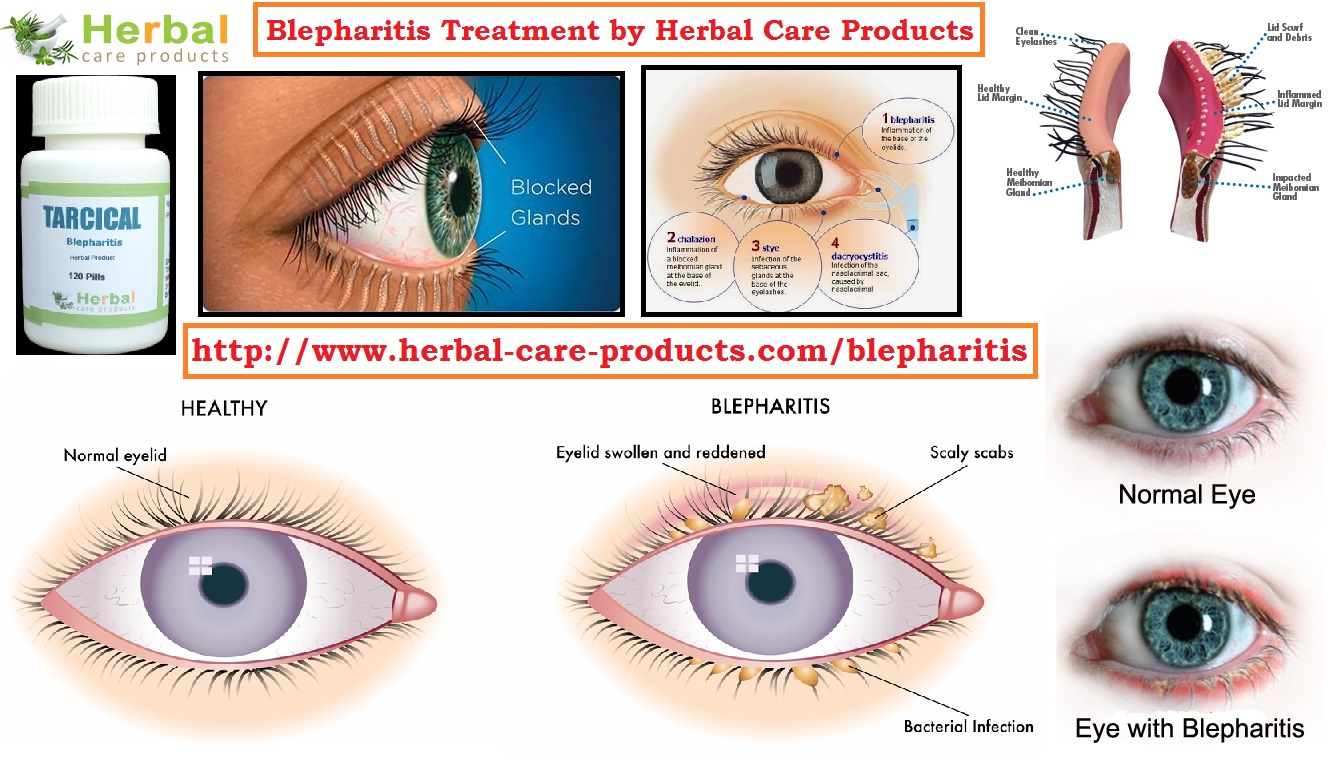 Natural Remedies Blepharitis