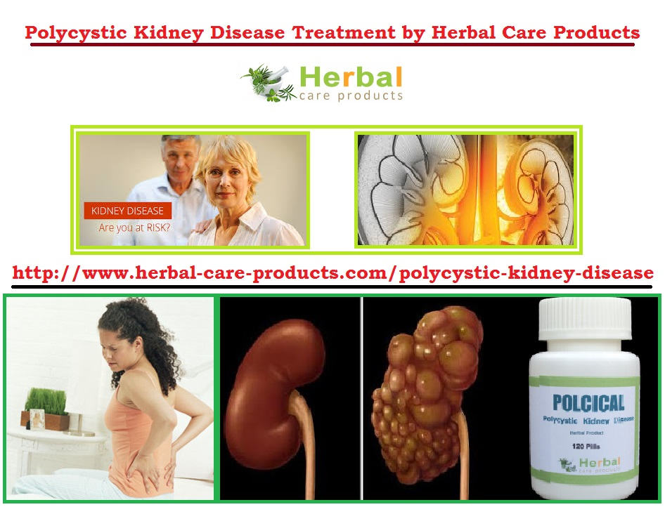polycystic kidney disease causes and treatment Polycystic liver disease (pld or pcld) is a rare condition that causes cysts -- fluid-filled sacs -- to grow throughout the liver a normal liver has a smooth, uniform appearance a polycystic.