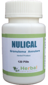 Granuloma-Annulare-Symptoms-Causes-and-Treatment-228x400