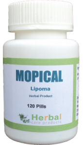 Lipoma-Symptoms-Causes-and-Treatment-228x400