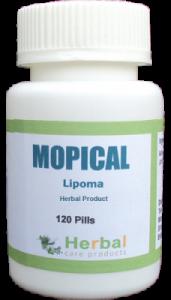 Lipoma-Symptoms-Causes-and-Treatment-228x400