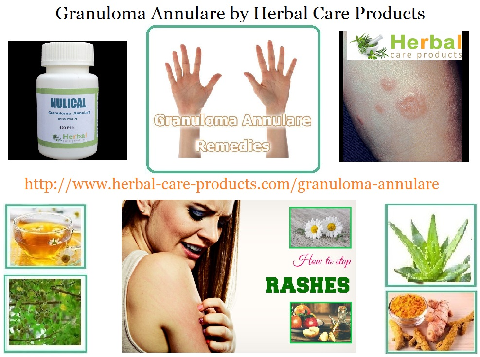 granuloma-annulare-treatment