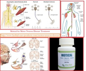 Natural Herbal Treatment For Motor Neuron Disease And