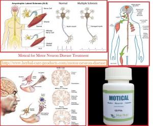 motor-neuron-disease-treatment