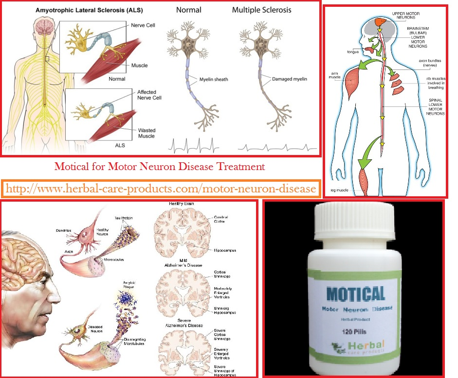 Herbal care products blog natural herbal remedies for What is lower motor neuron disease