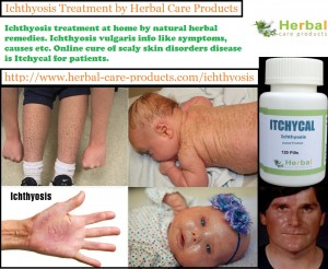 natural-herbal-treatment-for-ichthyosis-and-symptoms-causes