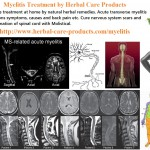 natural-herbal-treatment-for-myelitis-and-symptoms-causes