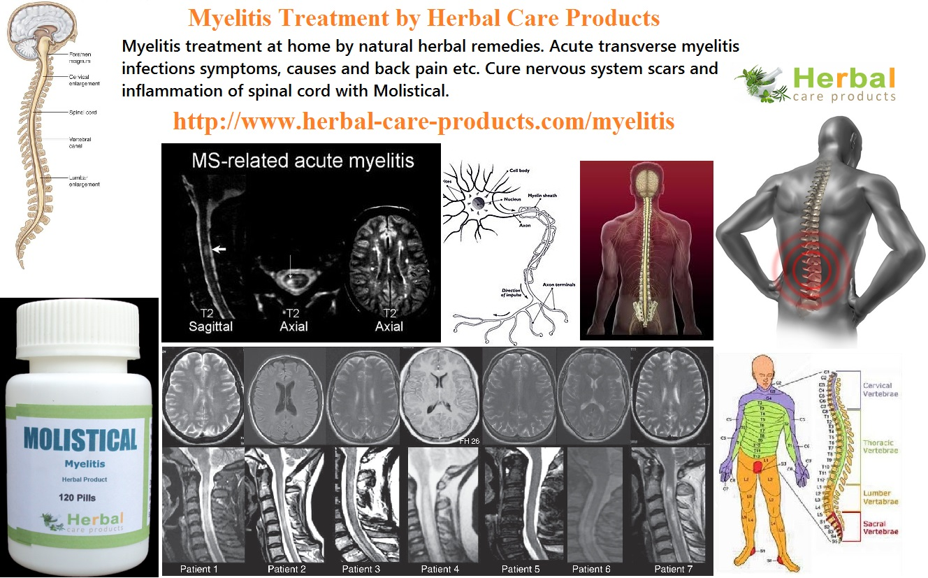 Is There A Natural Cure For Ms