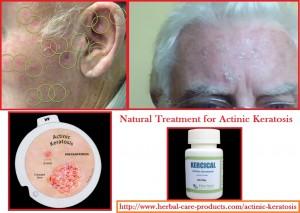 natural-herbal-treatment-for-actinic-keratosis