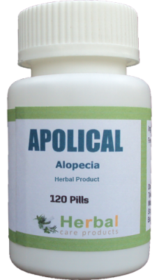 Best Natural Treatment For Alopecia Areata