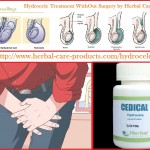 hydrocele-herbal-treatment