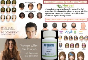 natural-herbal-treatment-for-alopecia-areata-and-symptoms-causes