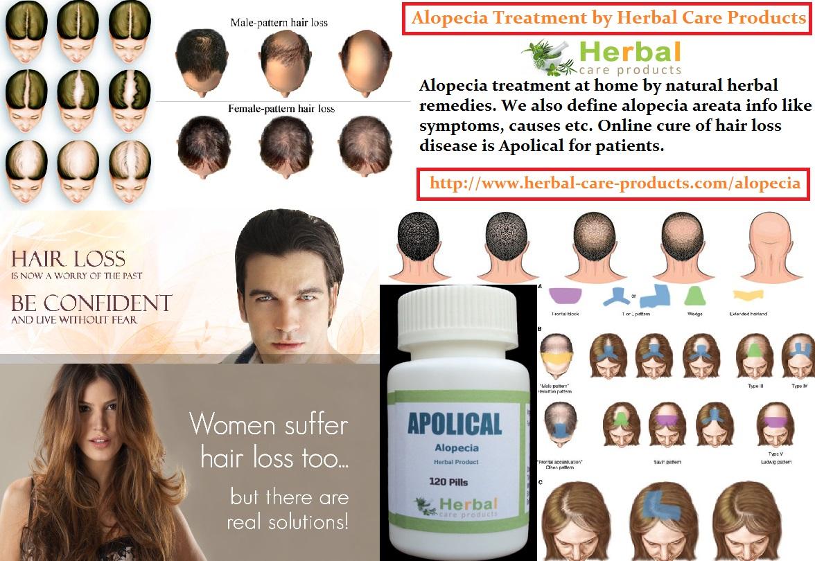 how to cure alopecia areata