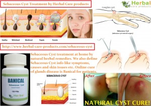 natural-herbal-treatment-for-sebaceous-cyst-and-symptoms-causes