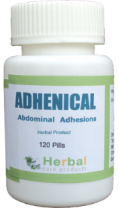 abdominal-adhesions-symptoms-causes-and-treatment