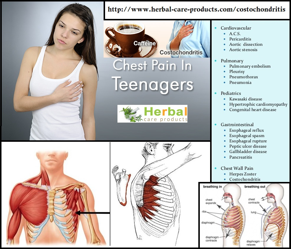 How to Treat Costochondritis