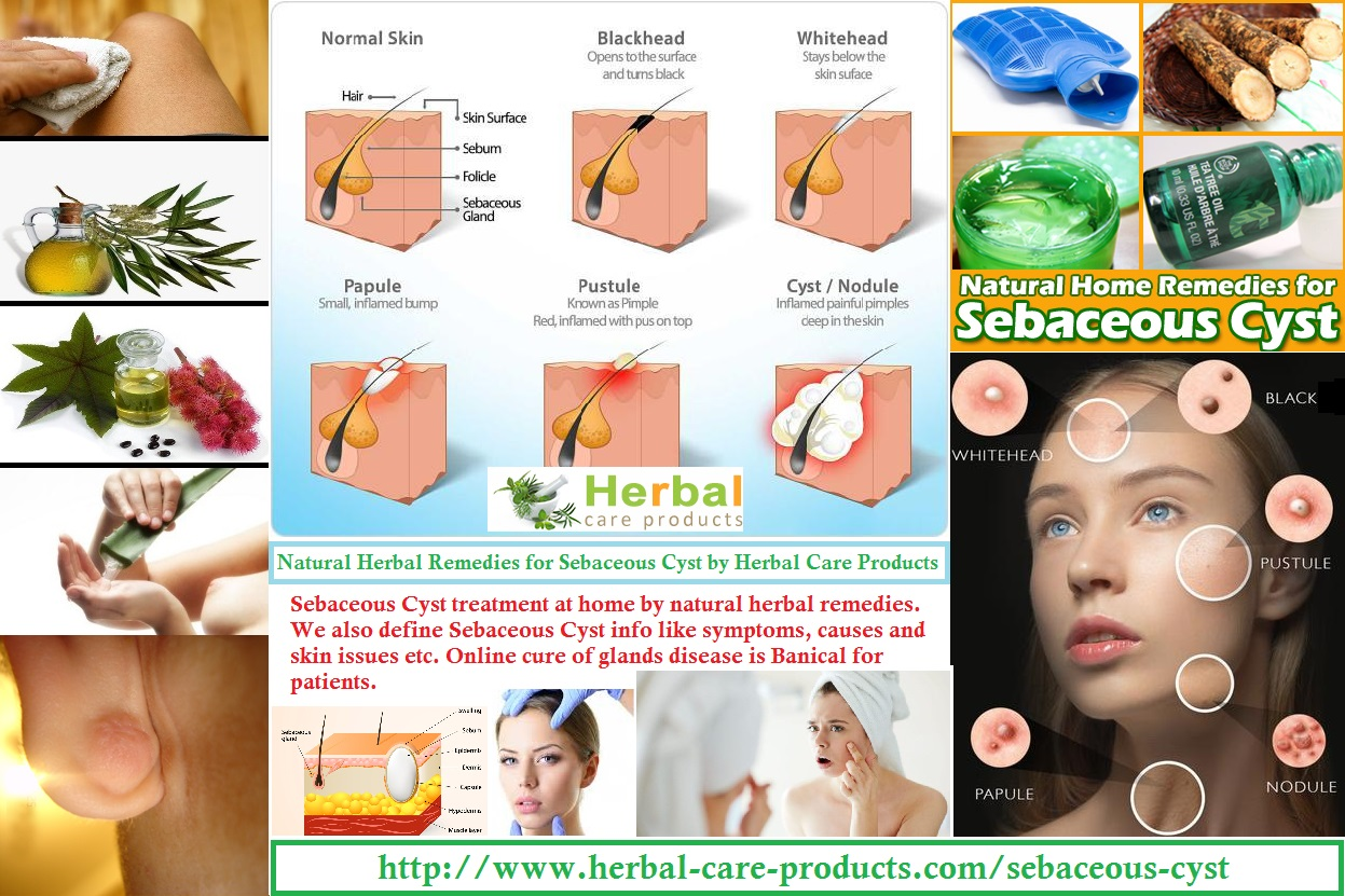 Sebaceous Cyst Natural Herbal Remedies for Skin Glands