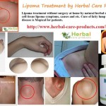 10 Natural Home Remedies for Lipoma