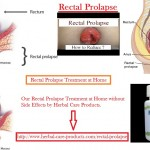 Natural Remedies for Rectal Prolapse