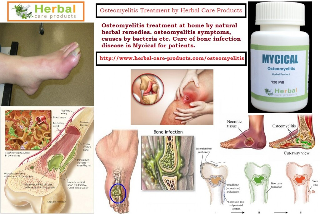 Natural Treatment for Osteomyelitis