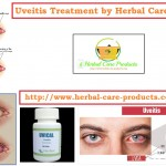 Natural Treatment for Uveitis