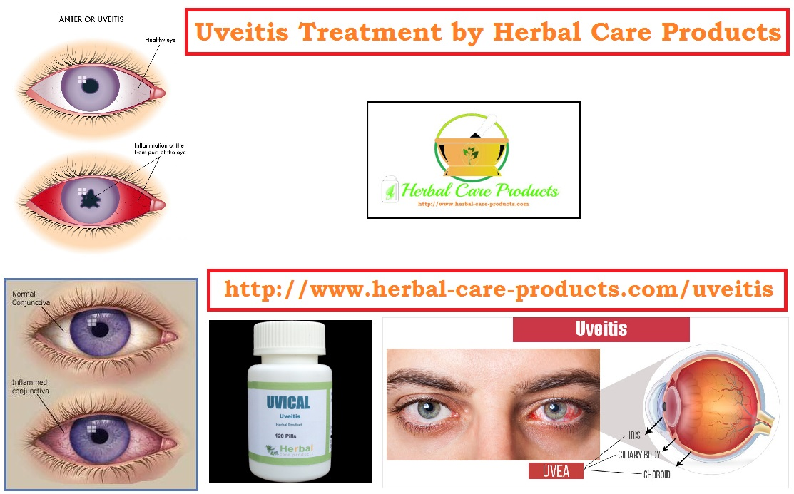 Home Remedies For Anterior Uveitis