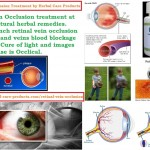 Natural Treatment for Retinal Vein Occlusion