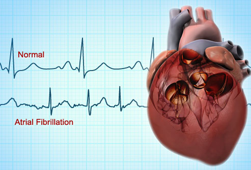 webmd_rf_photo_of_atrial_fibrillation