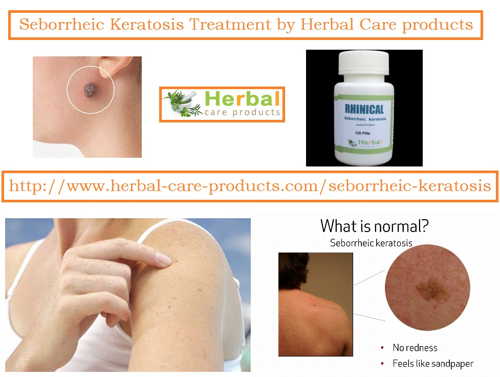 Natural Treatment for Seborrheic Keratosis