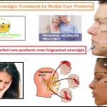 Natural Treatment for Trigeminal Neuralgia