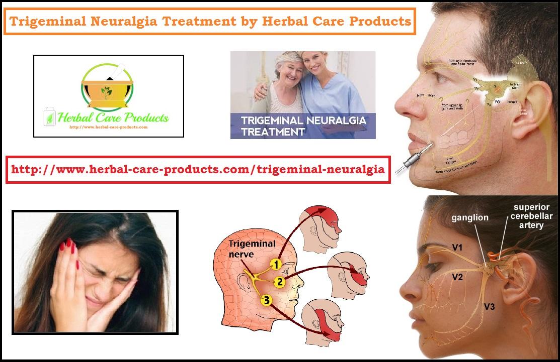 Natural Treatment for Trigeminal Neuralgia