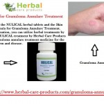 Natural-Treatment-for-Granuloma-Annulare